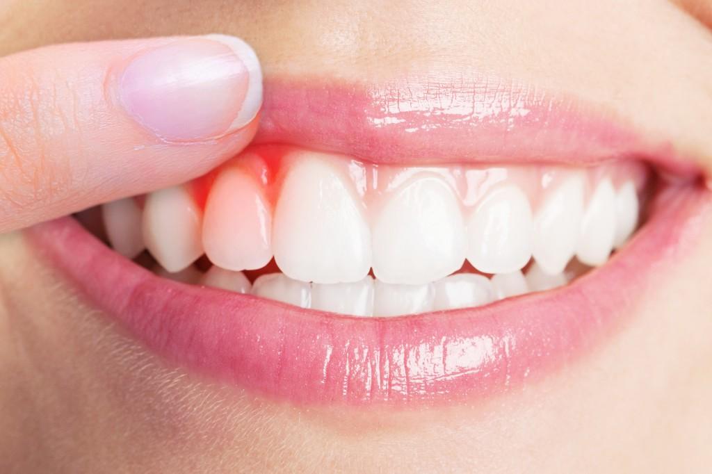 A parodontitis okozta rossz lehelet, Okozhatja-e emésztési probléma a rossz leheletet?