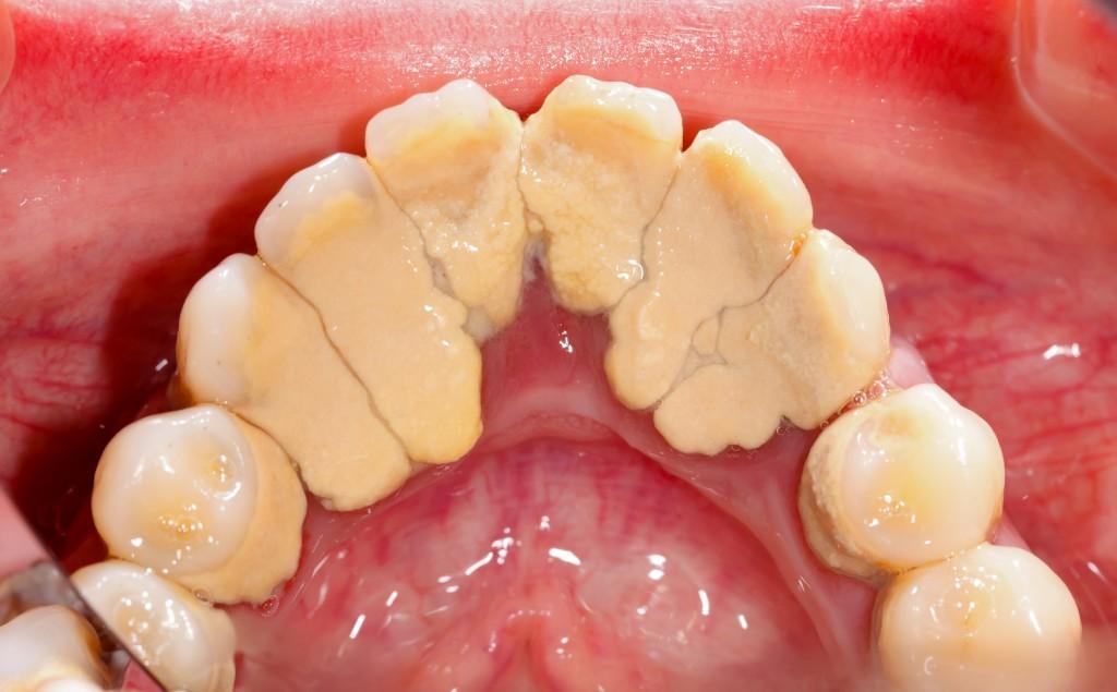 dohányzó fogak betegség